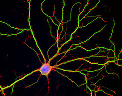 Large mature neuron image