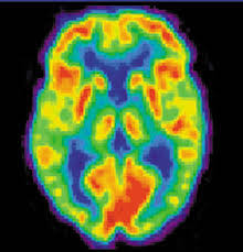 Positron Emission Tomography Image of Brain