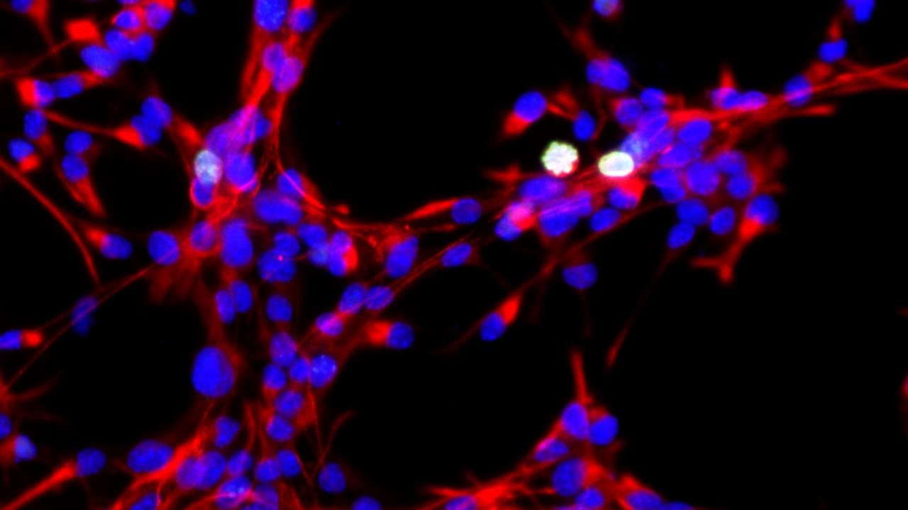 Neural stem cells dividing