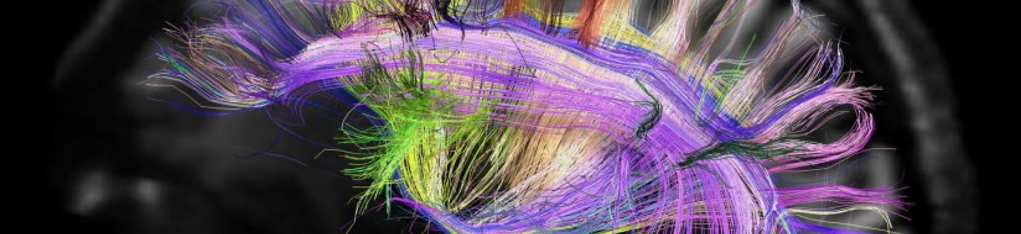 Artistic rendition of mapping the human brain with colored lines