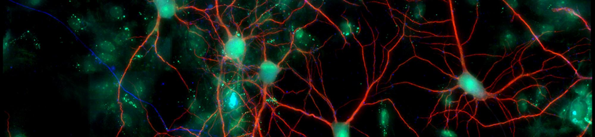 Cell culture of neurons