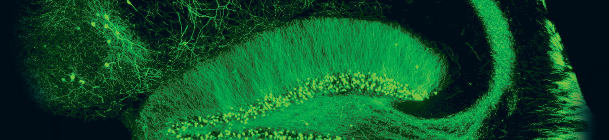 Section of mouse brain with fluorescent green stain. Image taken in Dr. Karen Zito's lab.