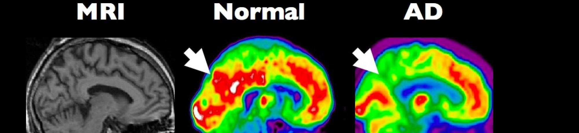 Scan of normal vs. Alzheimer's brain