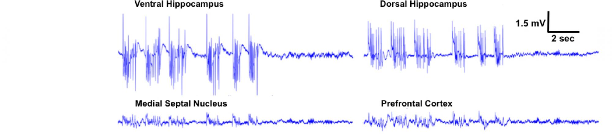 Graph of epileptic seizure by EEG