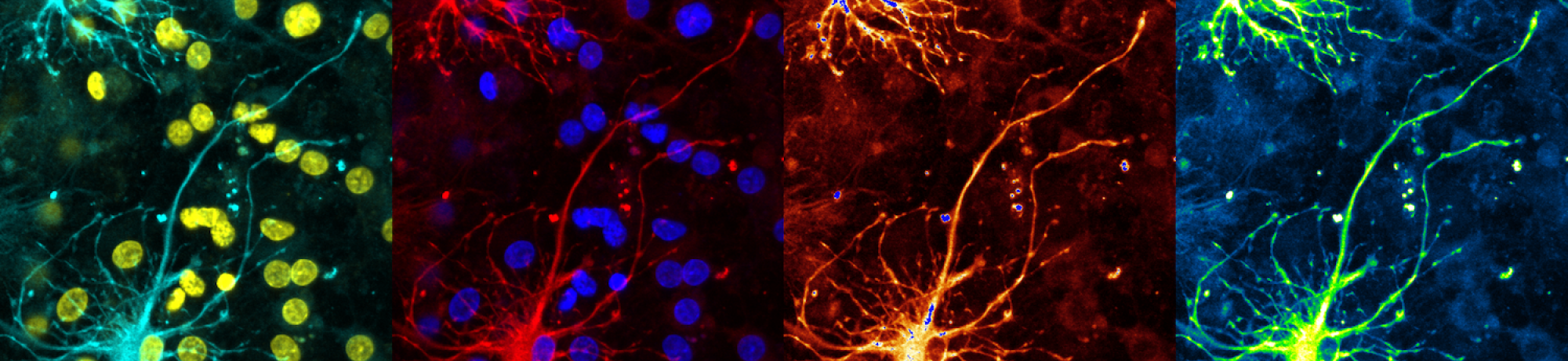 Montage of an image of neurons, captured using a confocal microscop. Neurons and nuclei shown.